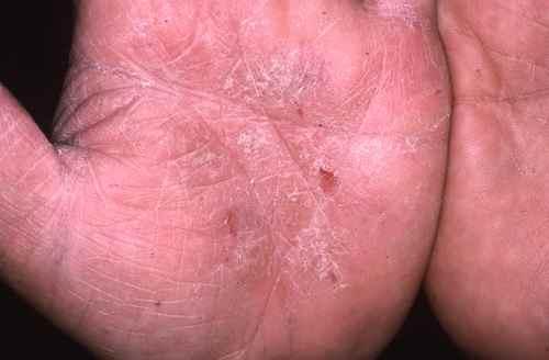 Dermatophytie (mycose) des mains