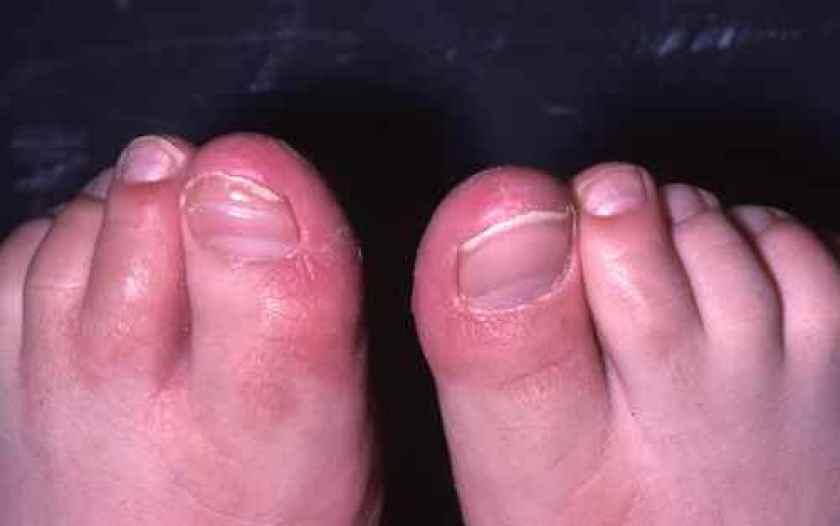 Aspect sec et qui pele sur les orteils et les pieds : c'est peut être une dermatose plantaire juvénile