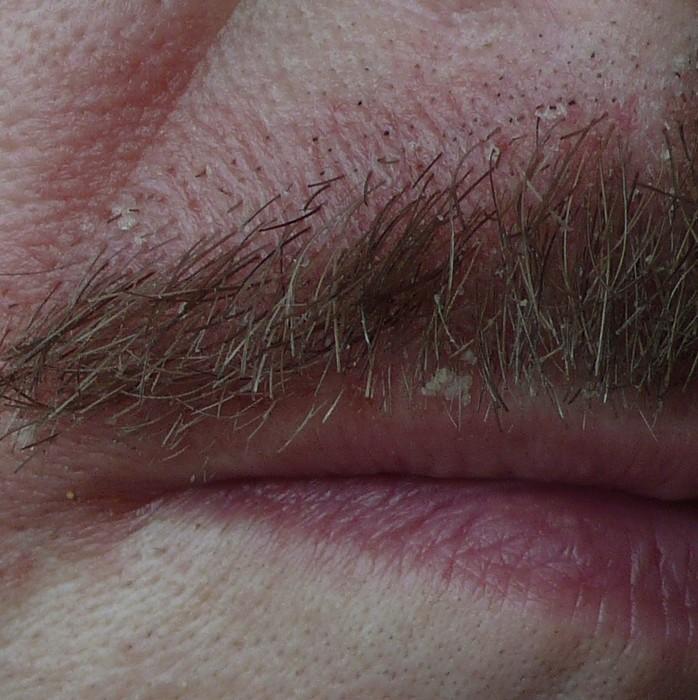 mycose dans le nez symptomes