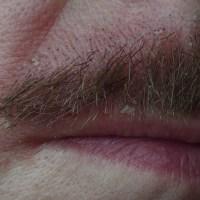DERMITE VISAGE : la dermite seborrheique (rougeurs sèches autour du nez)
