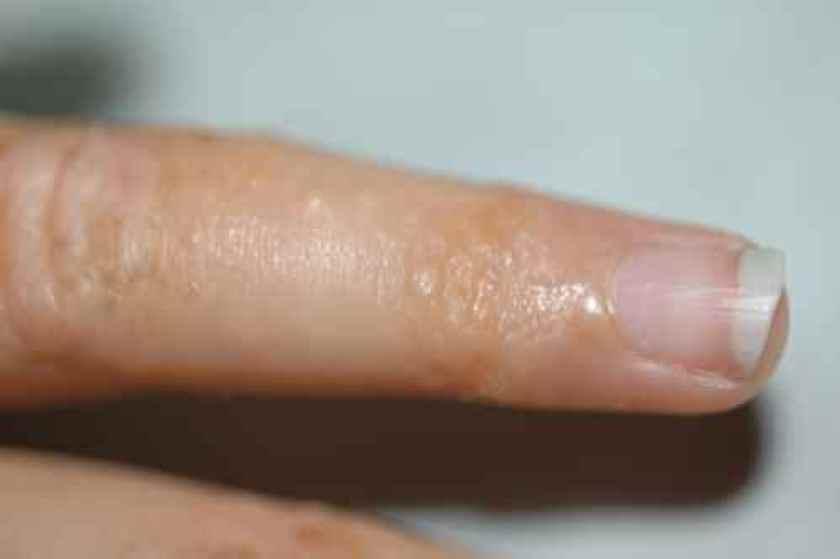 Dysidrose du doigt