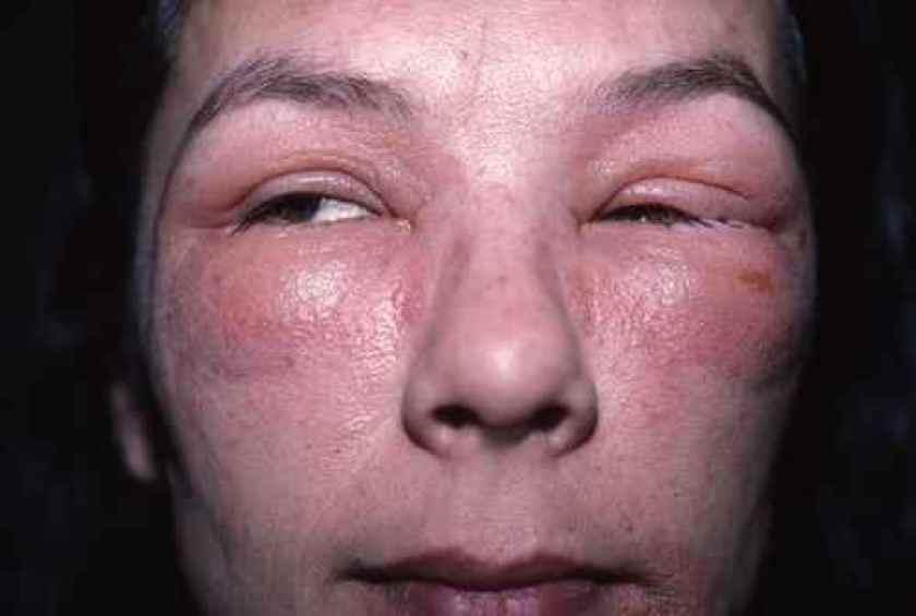 Eczema aigu du visage