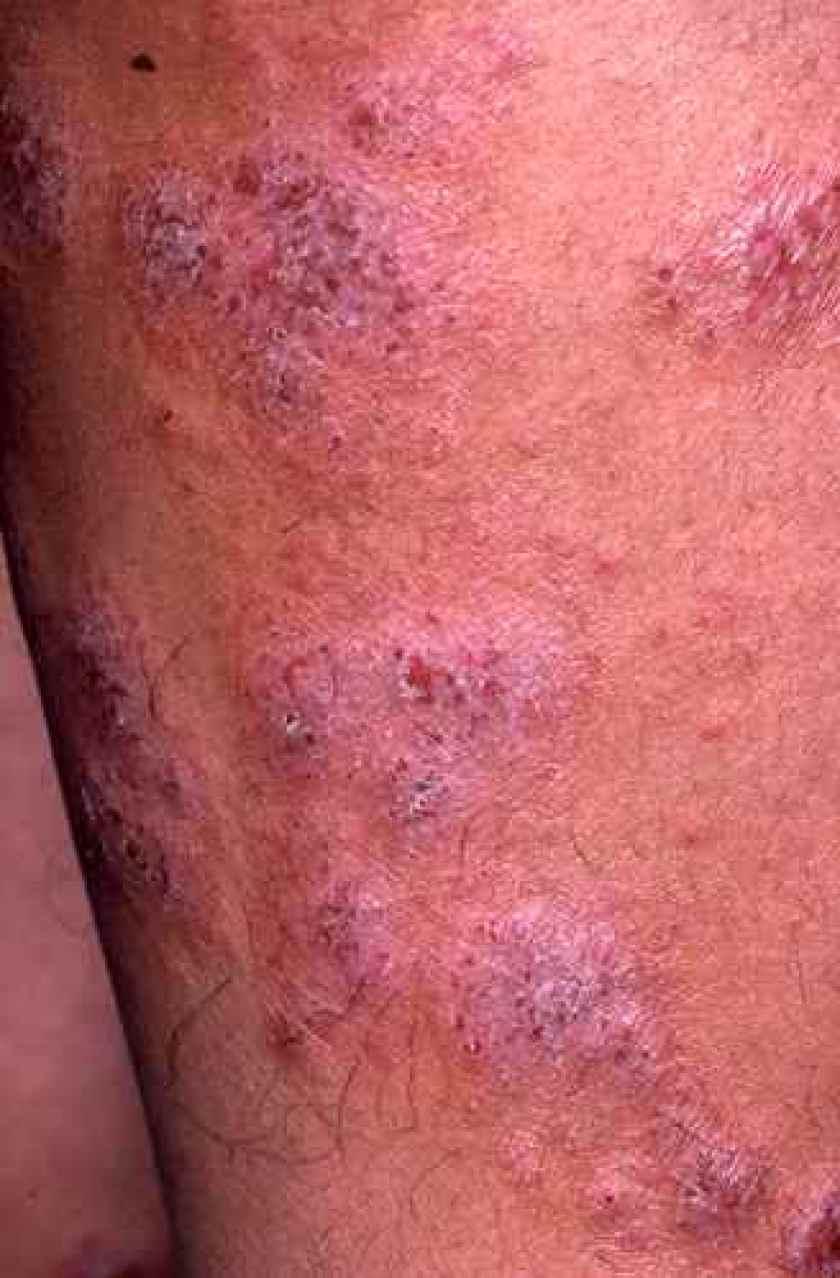 Eczema nummulaire chronique