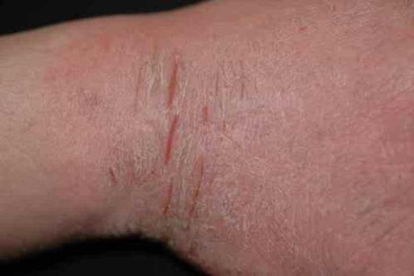 Eczema chronique fissuré
