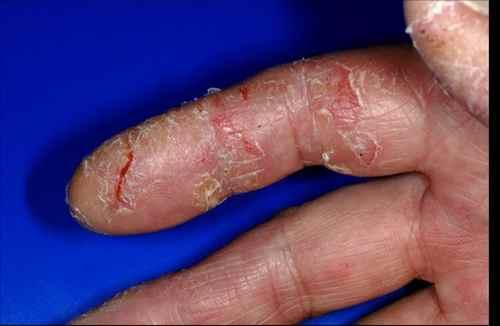 remède eczema bébé