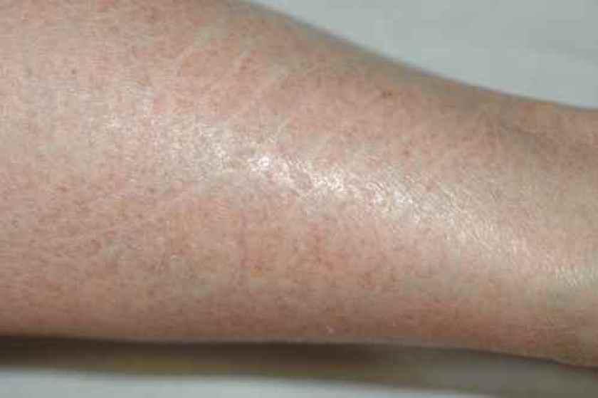 Eczema craquelé de la jambe