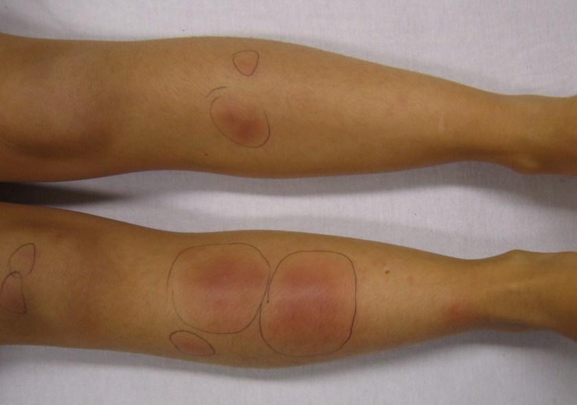 Erytheme noueux à la phase rouge inflammatoire