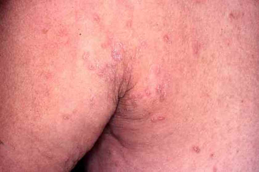 Une gale traitée à la cortisone : éruption profuse