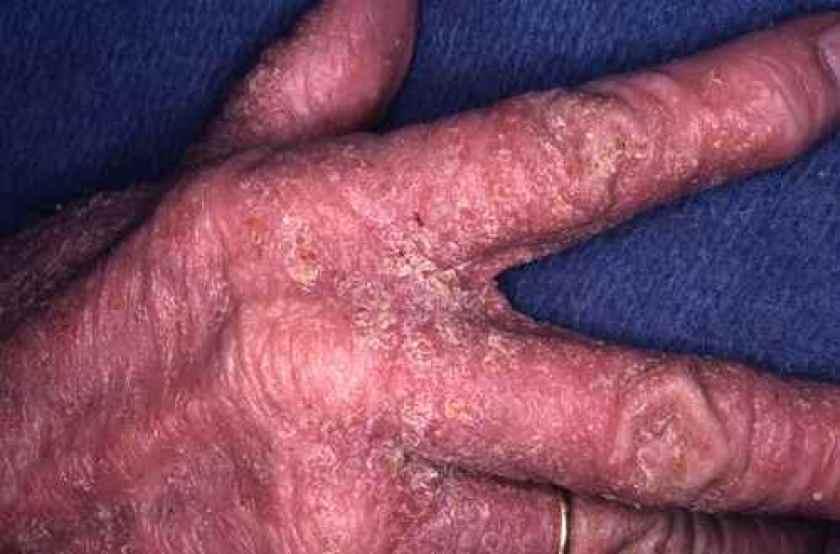 Atteinte hyperkératosique et profuse des mains