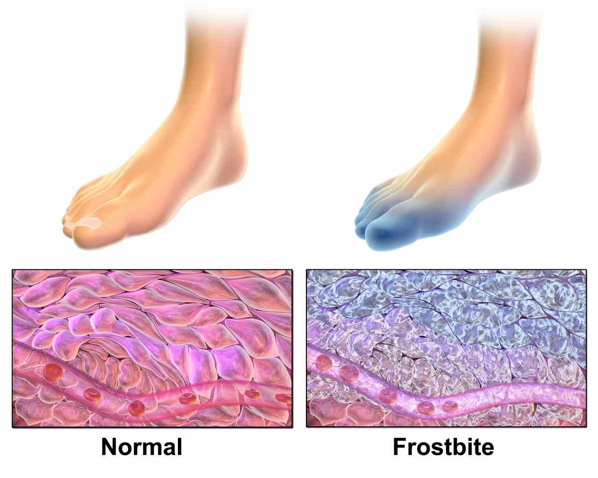 comment soigner engelure pied