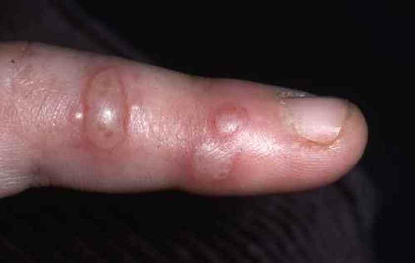 Herpes du doigt