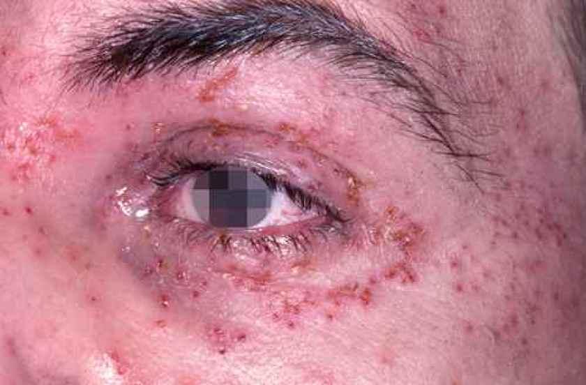 L'herpes de l'oeil