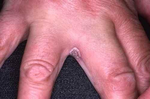 Candidose entre les doigts
