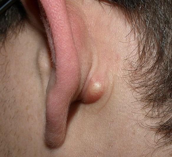 KYSTE : le kyste sébacé - Dermatologue en ligne