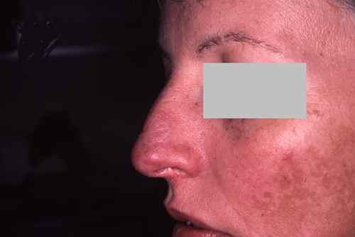 Lupus débutant du nez