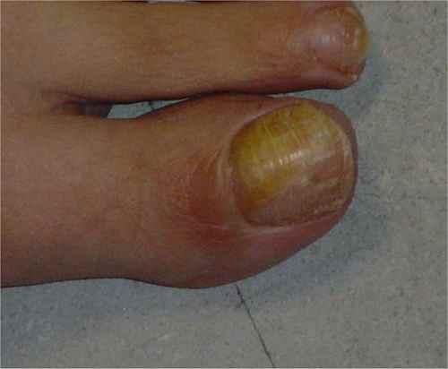 Mycose Ongle Guérir La Mycose Des Ongles Pied Gros
