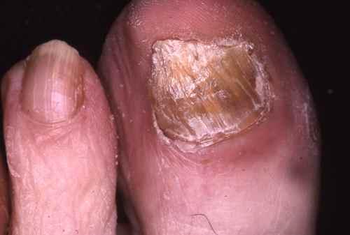 meilleur traitement mycose ongle pied