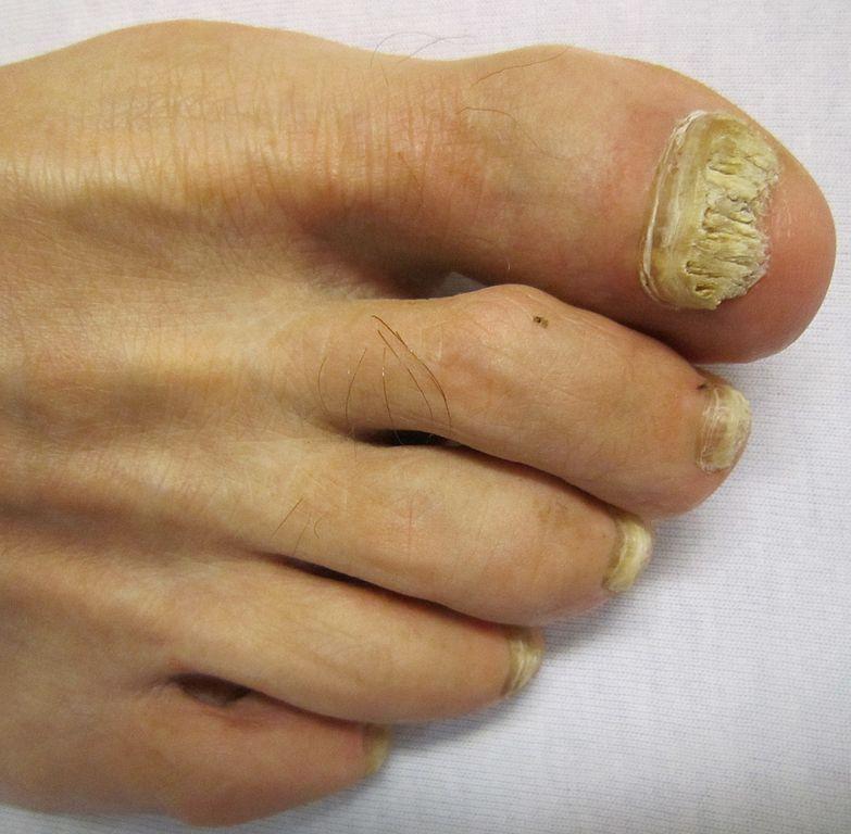 Mycose des ongles