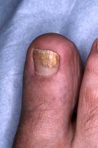 fonx mycose pied