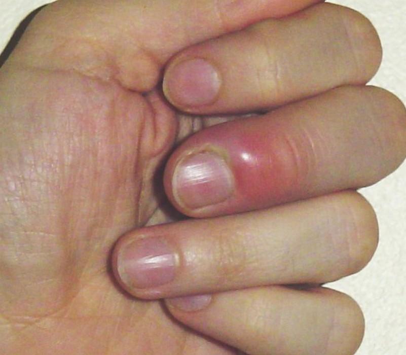 plaie infectée doigt