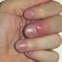PANARIS DU DOIGT OU DU PIED : soigner un panari (doigt ou orteil)
