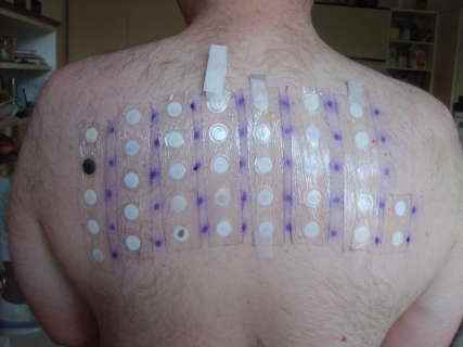 patch tests