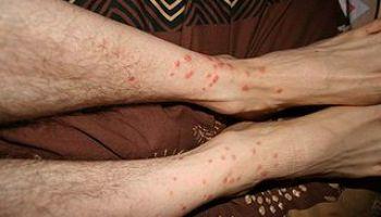 PIQURE ARAIGNEE : symptomes, que faire en cas de morsure d ...