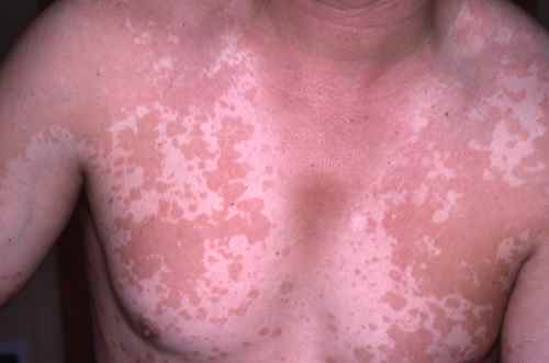 pityriasis versicolor traitement efficace