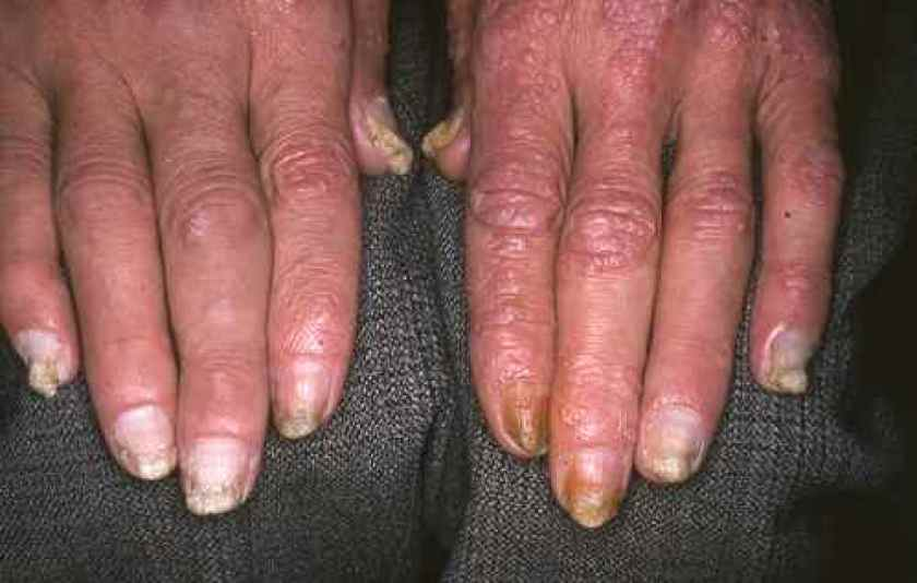 Le psoriasis sur longle de la main