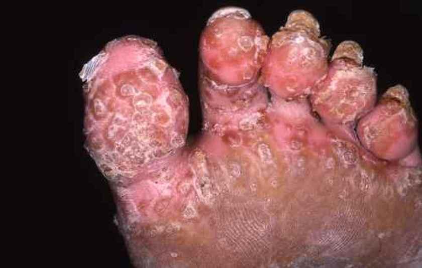 Atteinte pustuleuse d'un psoriasis du pied