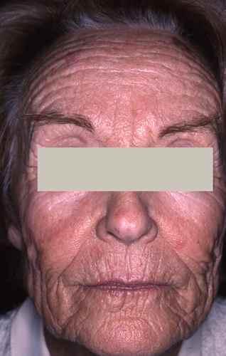 DERMABRASION : lutter contre les rides et les cicatrices par
