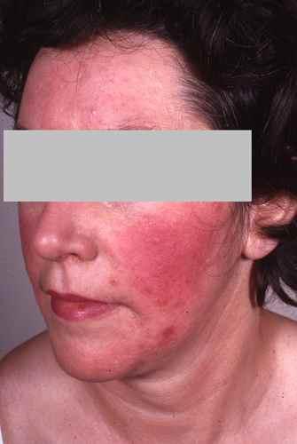 Rosacée : une cause de rougeurs du visage