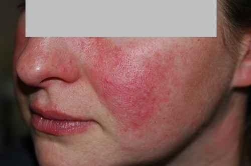 La variété à atopitcheskom la dermatite