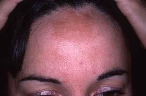 Masque de grossesse sur le front