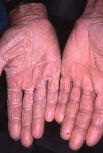 Mycose (dermatophytie) des mains