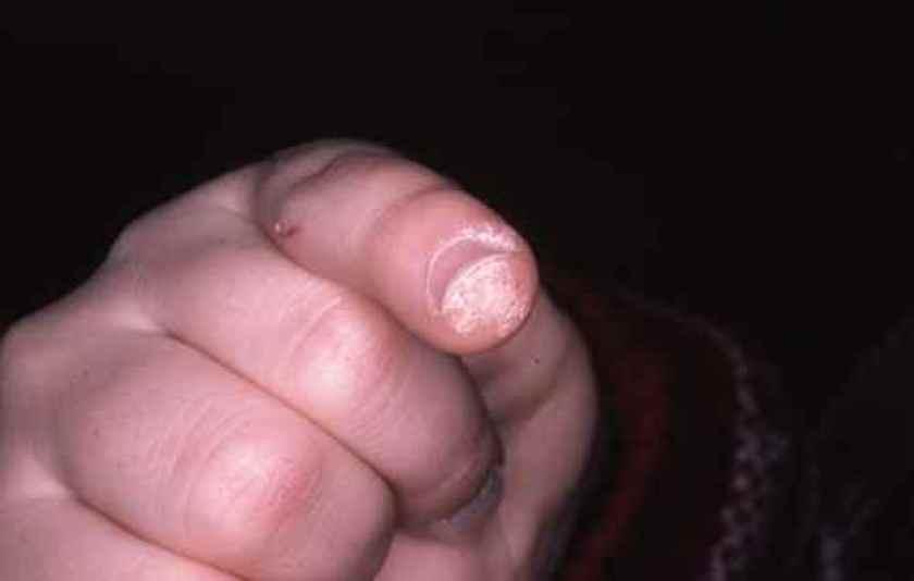 Verrue sous l'ongle, difficile à traiter