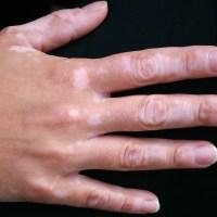 VITILIGO : le vitiligo, causes et symptomes