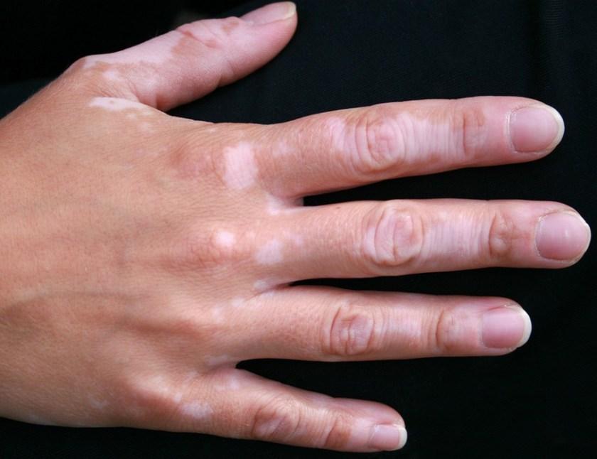 Tache blanche taches blanches sur la peau ou d pigmentation causes dermatologue en ligne - Tache de calcaire sur les vitres ...