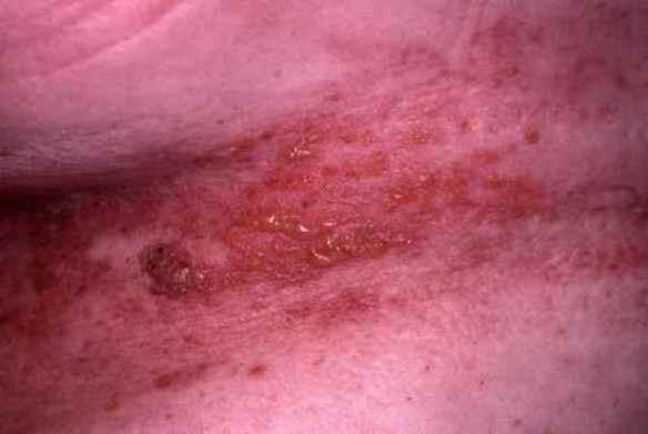SYMPTOMES DU ZONA : les symptomes et boutons du zona ...