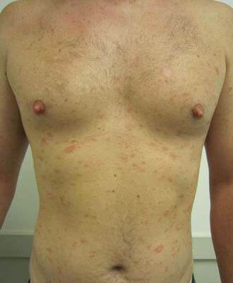 PITYRIASIS ROSE : durée, causes, symptomes, traitement du pityriasis rosé de Gibert