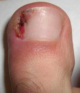 ONGLE INCARNE : solution contre l'ongle incarné et le soigner