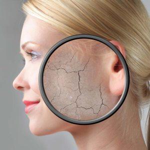 understanding dry skin