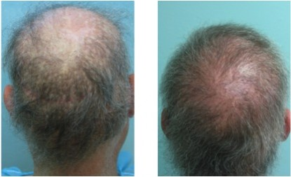 Body Hair To Head Transplant With UGraft FUE Technology