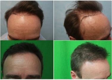 Hairline Repair  DermHair Clinic Los Angeles 13103181500