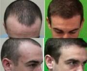 hairline restoration factors