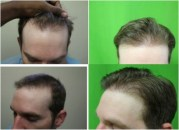 receding hairline fue treatment