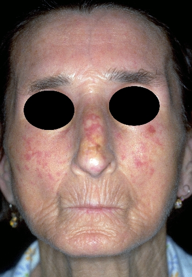 Image result for face scleroderma
