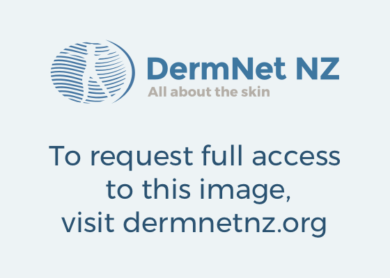 Swimmers itch  DermNet New Zealand