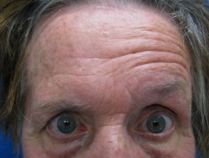 Ramsay Hunt syndrome | DermNet NZ