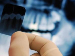 Dentadura con placa panorámica